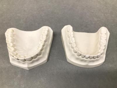 Set Of Dental Impressions