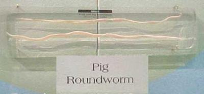 Mounted Pig Roundworm, Plastomount, Ascaris
