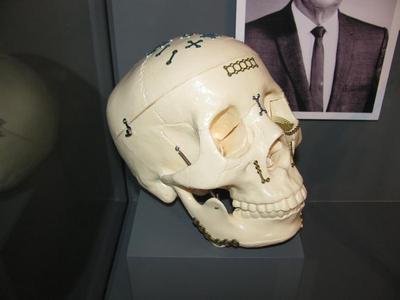 Craniomaxillofacial Skull