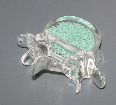 Vertabral Augmentation Equipment, Bone Cement